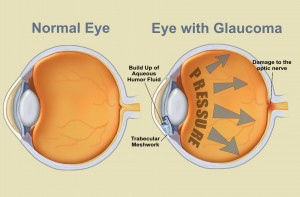 eyes_glaucoma