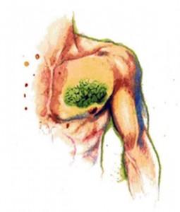CursoFibromialgia