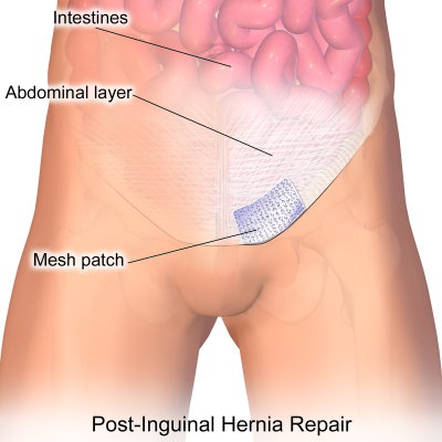 Inguinal_Hernia_Patch