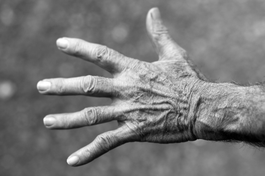 artritis en la mano