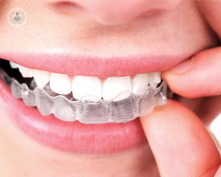 invisalign alternativa