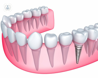 pilares de los implantes dentales | Top Doctors