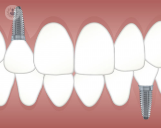 implantes dentales by top doctors
