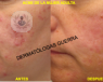 acne mujer adulta