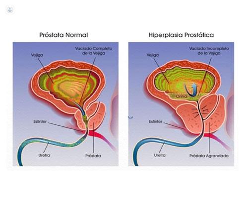 próstata agrandada y falta de líquido eyaculado