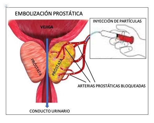 nombre de la inyección de próstata