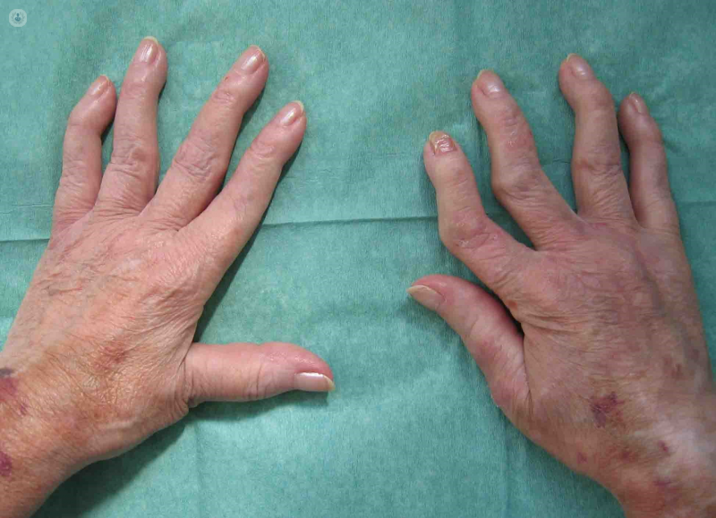 articulo de persuasion sobre enfermedad de artritis