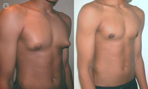 Image result for gynecomastia