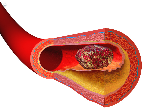 A un varicosity dove mettere sanguisughe