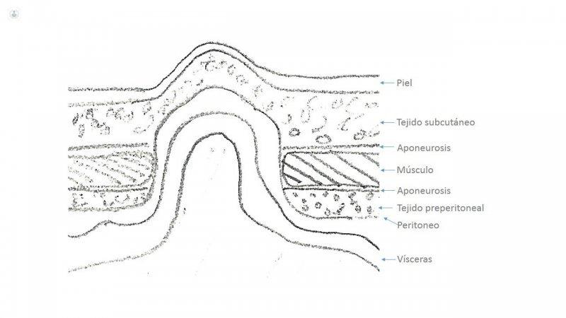 Hernia intestinal tratamiento