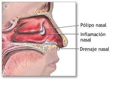 Pólipos Nasales Causas Síntomas Tratamiento Y Pronóstico