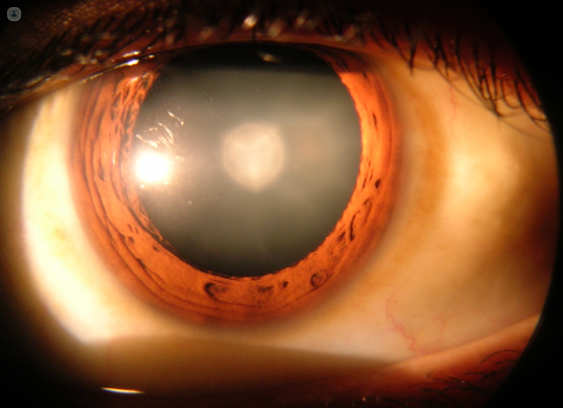 Learn about the advantages of femtosecond laser cataract surgery and presbyopia.