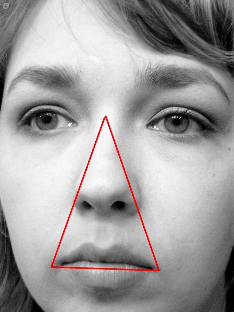 tabique nasal desviado sinusitis