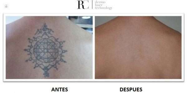 Picoway La Solución Para Eliminar Tatuajes