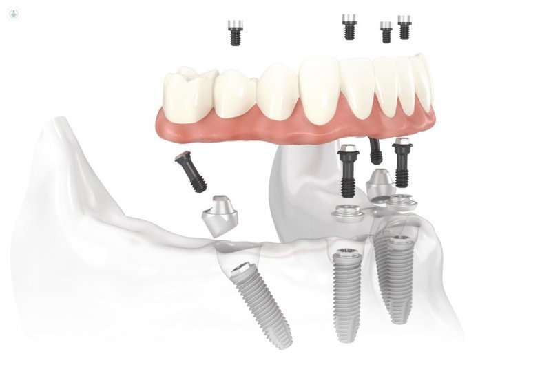Implantes dentales de carga inmediata: beneficios y riesgos