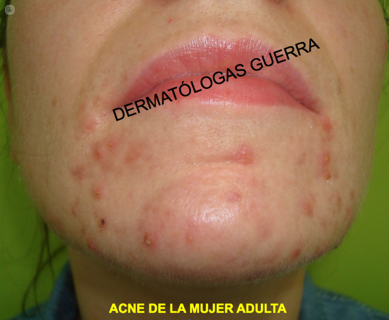 acne photo donna