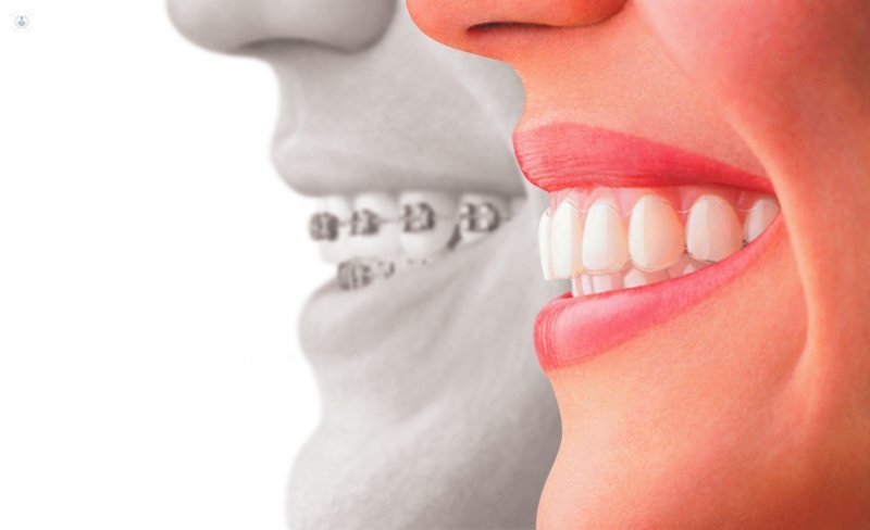 Ortodoncia invisible, una alternativa a los brackets convencionales