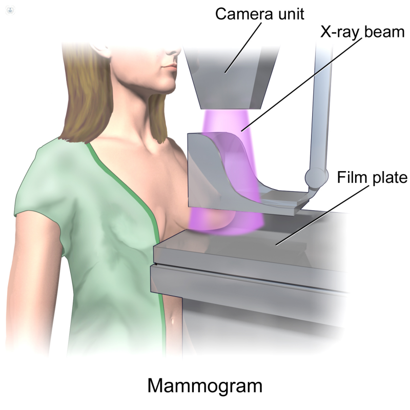 what does a mammogram machine look like