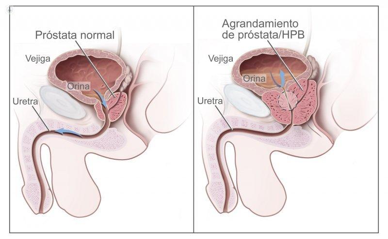 micción frecuente de próstata en la noche d