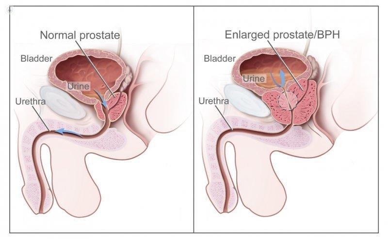 ¿Qué son pintas para la próstata?