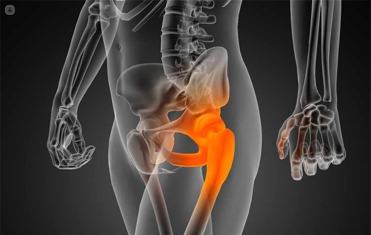 Necrosis avascular o isquémica cadera | traumatólogo - Murcia