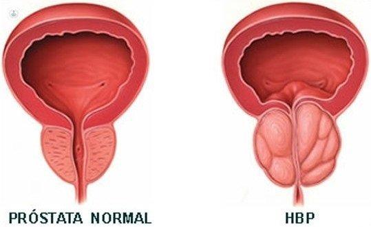 hiperplasia prostática recuperación quirúrgica