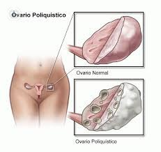 Drawing polycystic ovary
