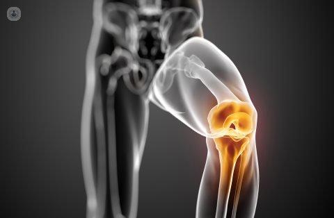 diagnostico para artroscopia de rodilla