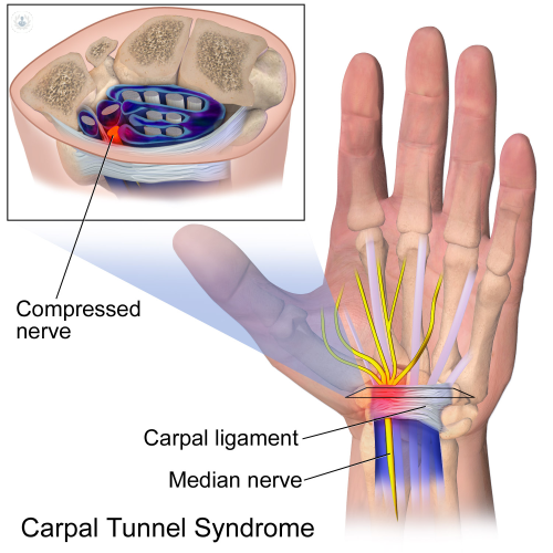 problemas tunel carpiano sintomas de diabetes