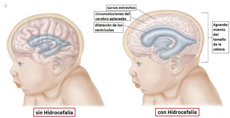 La hidrocefalia es