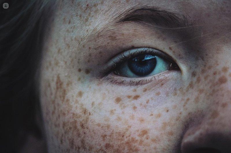 eliminar manchas de la piel con laser