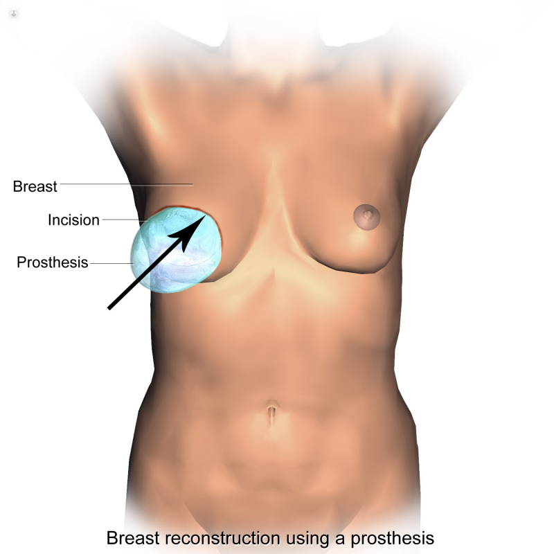 drawing Breast Reconstruction