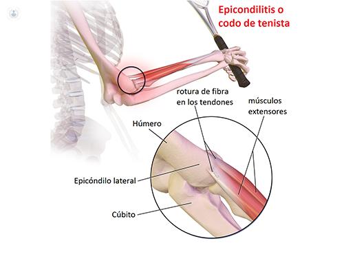Epicondilitis o codo de tenista | traumatólogo - Valencia
