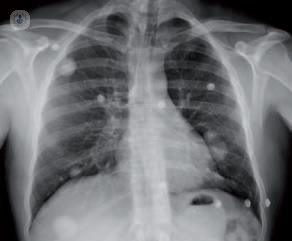 Diagnostico de lo nodulos pulmonares