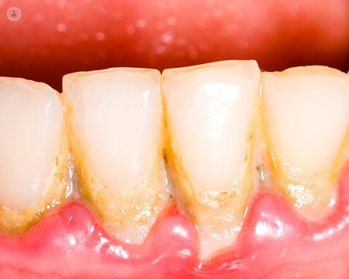 periodontitis y diabetes