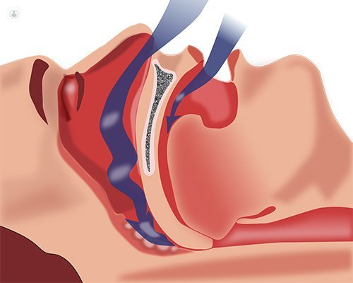 Sleep apnea surgery
