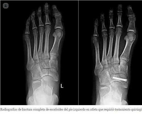 foot fracture stress