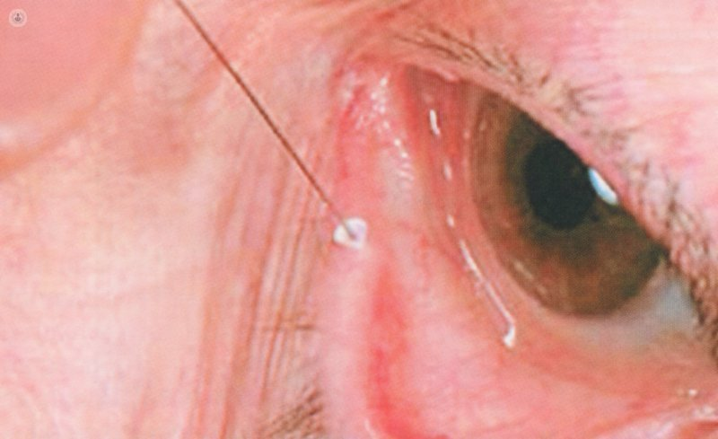 punctal plugs dry eye