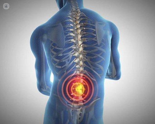 infiltracion epidural para hernia discal