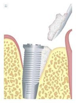 treatment for peri implant diseases Peri-implantitis/mucositis now that dental implants have become more common, two new disease conditions have been diagnosed and named peri-implantitis and mucositis mucositis, which is the milder condition, which may or may not precede peri-implantitis, though both are inflammatory disorders.