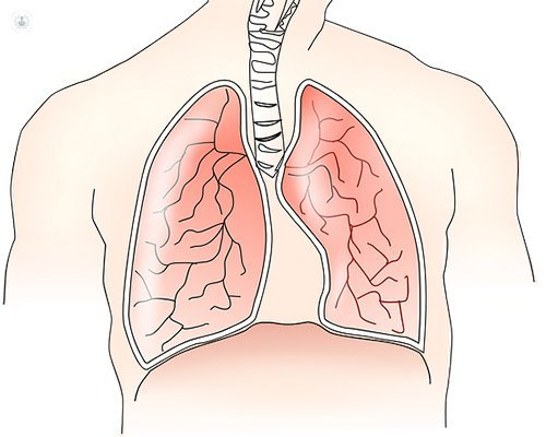 nodules in the lungs