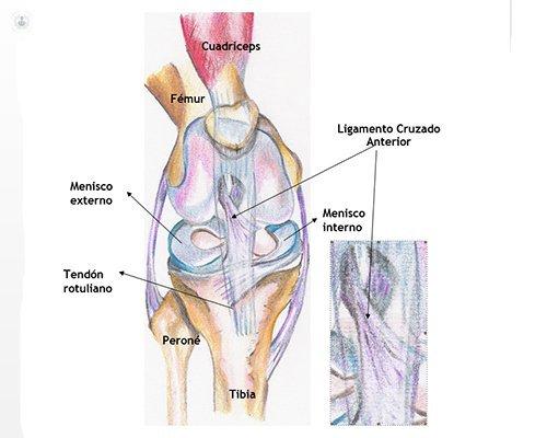 precio operacion menisco y ligamentos