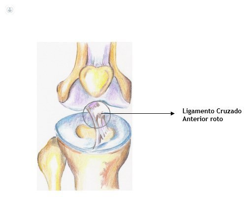 treatment of torn ligament