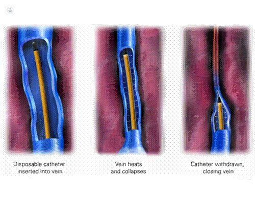 removal of varicose veins