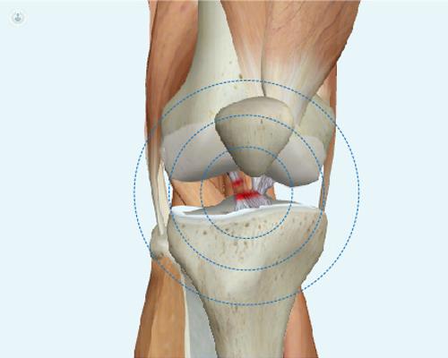Rotura ligamento cruzado anterior   traumatólogo - Murcia