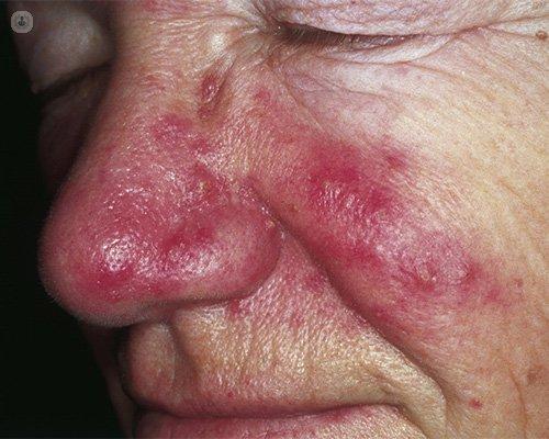 signos y sintomas de la rosacea