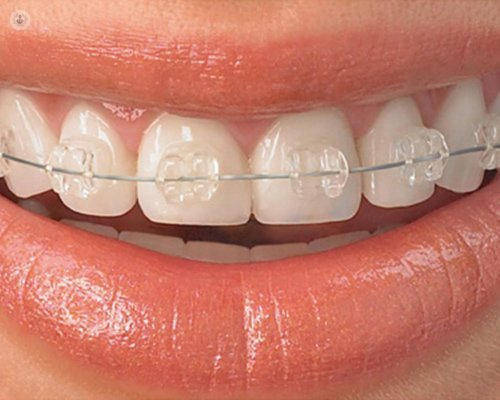 when to wear orthodontics