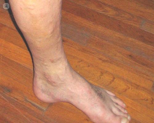 vena esclerosada