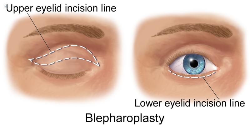 Dibujo de las incisiones que se realizan en blefaroplastia superior e inferior.