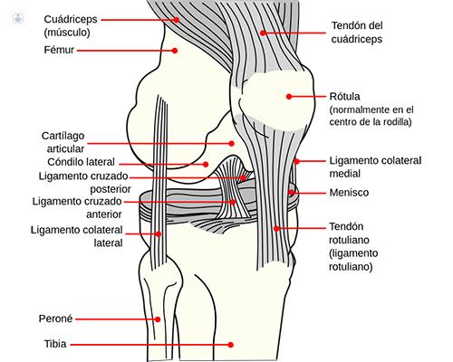 Condromalacia rotuliana tratamiento quirurgico